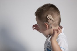 Against Cochlear Implants